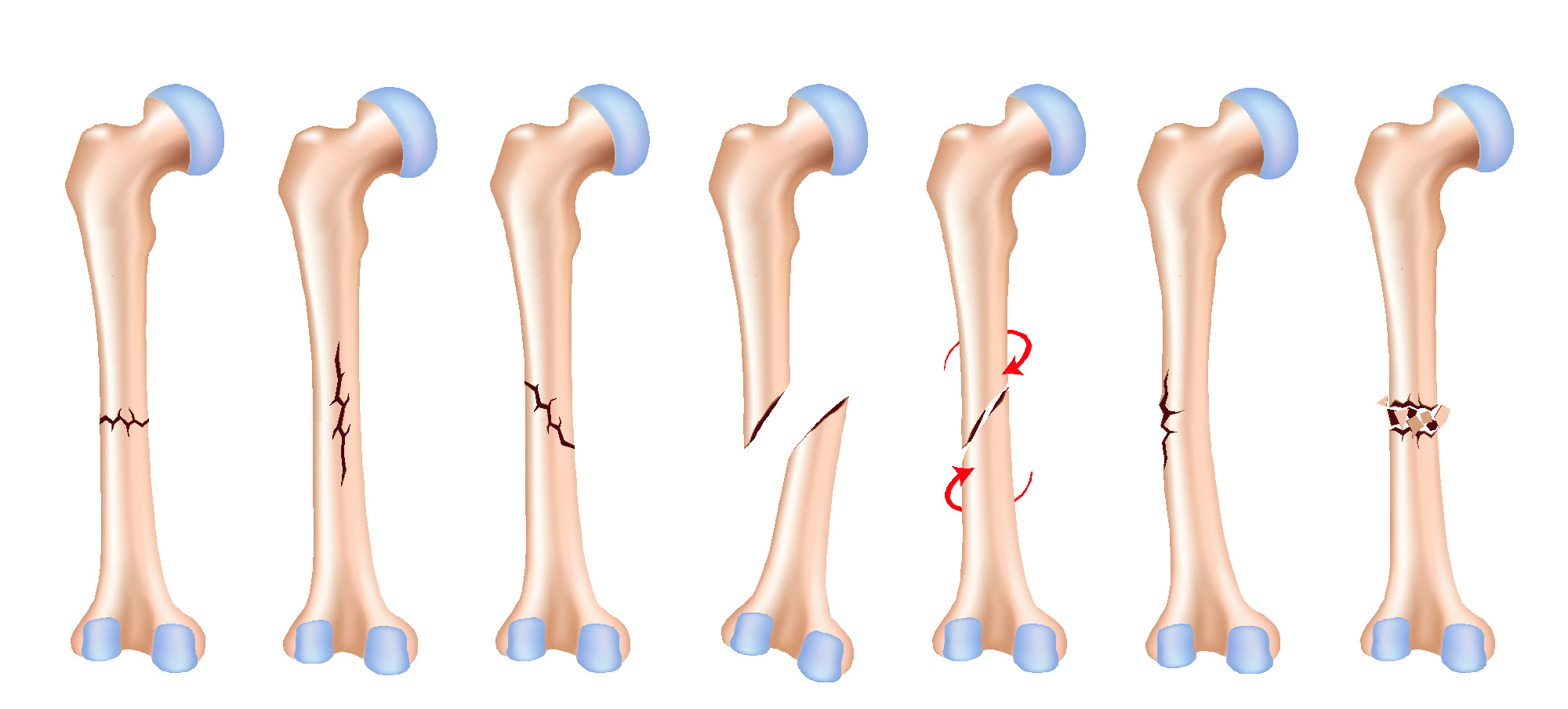 Bone Fractures Convergent Movement And Performance Llc